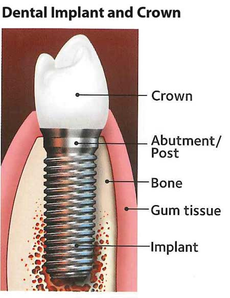Dental malpractice: What you must know about implants