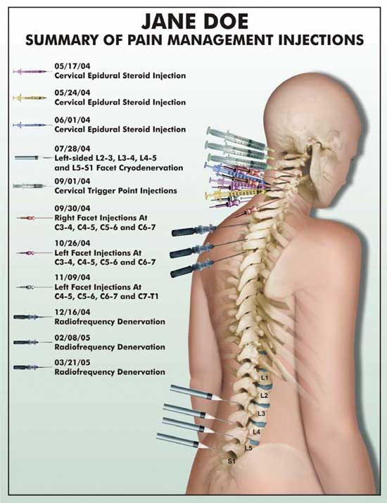 The five most effective ways to demonstrate spinal injuries